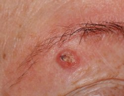Spinaliom / Hautarzt Mainz Privatpraxis Dr Kasten Hautmedizin